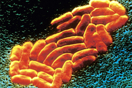 MRSA-Antibiotic-Resistant-Superbug
